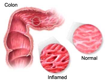 Conferencia Colitis ulcerosa y colon irritable
