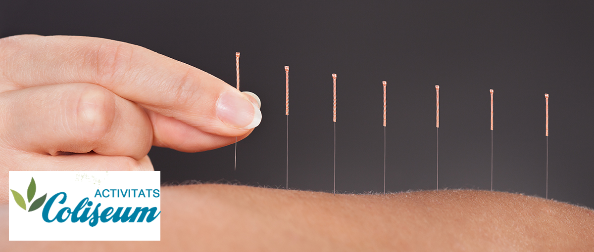 Articulaciones sanas con acupuntura y alimentación adecuada. Charla gratuita